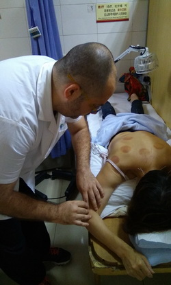 acupuncture_in_belgrade