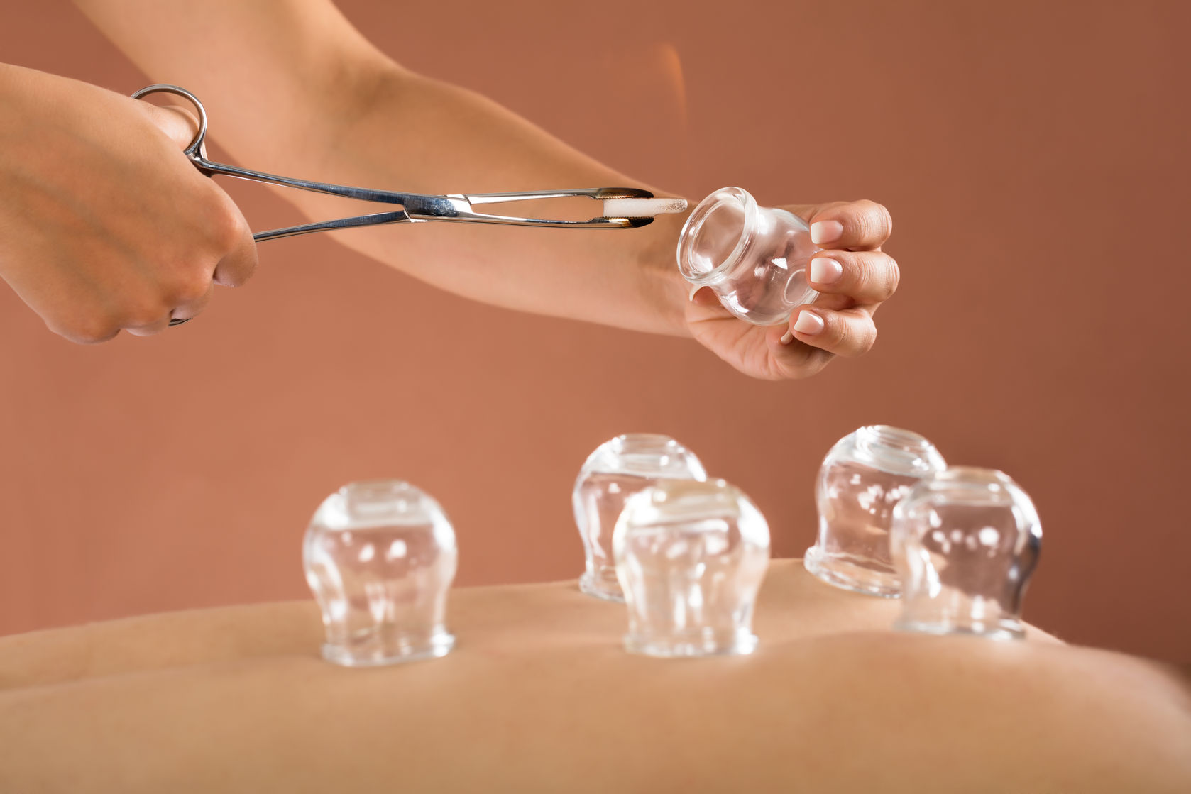 65319923 - close-up of a therapist giving cupping therapy to man in spa